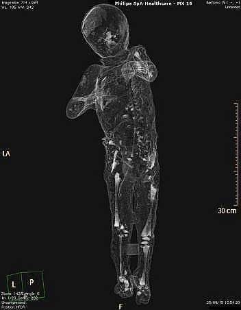 Компютърна томография показва останките от детски скелет намерен до мъж и жена, които най-вероятно са родителите на детето.