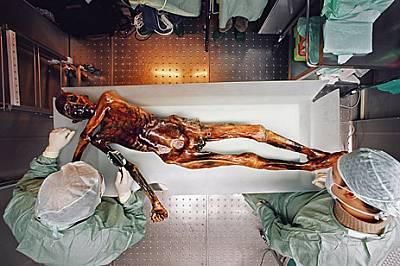 Съдебна медицинаМакар и без коса, без нокти на ръцете и краката и без най-горния си пласт кожа, Леденият човек е чудесно съхранен. Учените са го изсле...