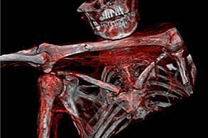 Причина за смърттаИзображението от компютърния томограф показва връх на стрела под лявото рамо. Някой е застрелял Ледения човек в гръб, след което е и...