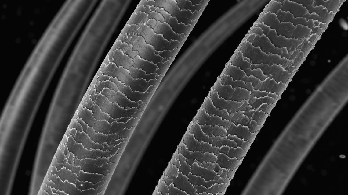 Здрав и увреден косъм под класически микроскоп.
