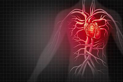Как да се предпазим от инфаркт?